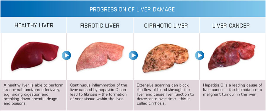 what causes most liver diseases? it isn't alcohol. | world of wasabi, Human Body